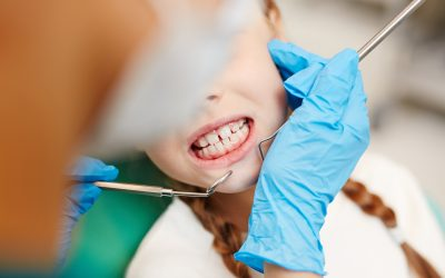 Children and Teeth Grinding: What to Know